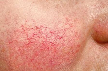 Почему лопаются капилляры на лице: основные причины и методы избавления