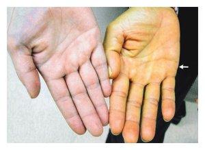 Желтушная кожа