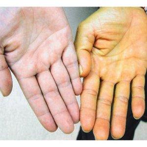Как уменьшить билирубин в крови: причины увеличения и методы лечения
