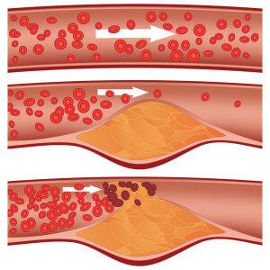 Таблетки, снижающие холестерин в крови: список наиболее эффективных средств