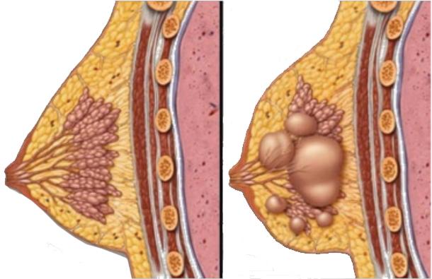 Рентгенологическая картина фиброзно-кистозной мастопатии