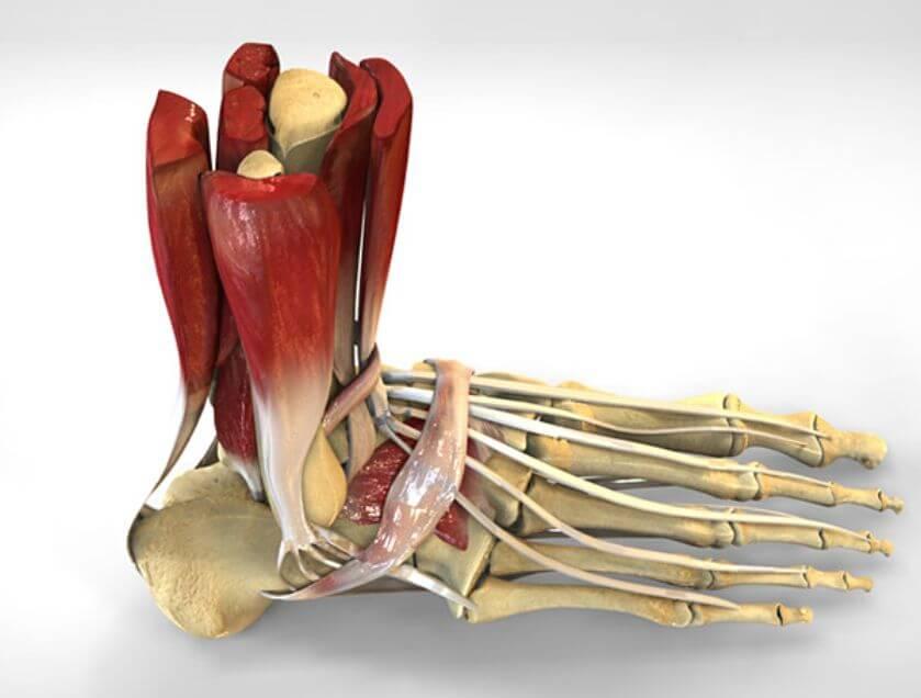 Лигаментоз подошвенного апоневроза и ахиллова сухожилия