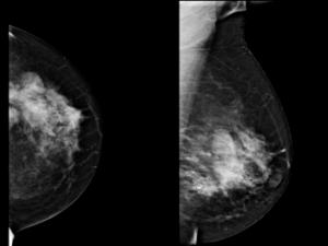 Мастопатия на рентгеновском снимке