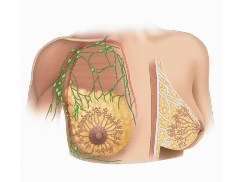 Диета при фиброзно-кистозной мастопатии на каждый день