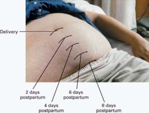 Размеры матки после родов
