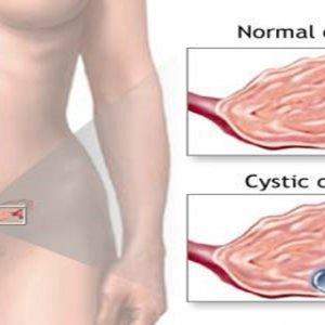 От чего возникает киста яичника в менопаузе: симптомы, осложнения, консервативное и народное лечение