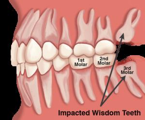 Прорезается зуб