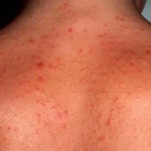 Стероидные угри: когда гормон играет против кожи