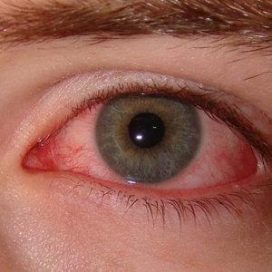 Аденовирусный кератоконъюнктивит: препараты для лечения