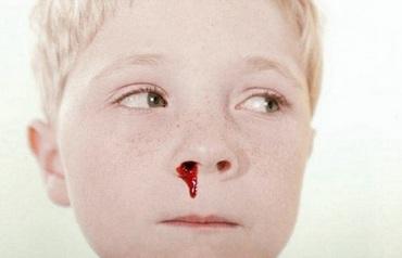 Частые носовые кровотечения у детей: причины, меры предосторожности