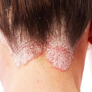 Как и чем лечить псориаз волосистой части головы на дому