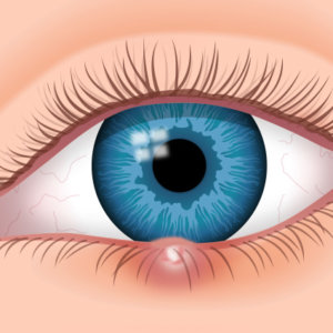 Как лечить ячмень под глазом: рекомендации специалистов