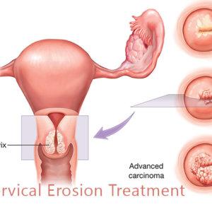 Когда можно беременеть после прижигания эрозии: рекомендации