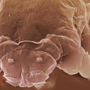 Демодекоз век: как лечить различными средствами с максимальным эффектом