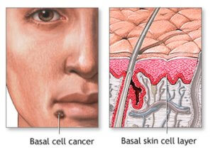 Лечение базалиомы