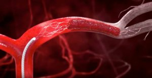 Быстрая свертываемость крови