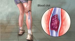 Наличие варикоза