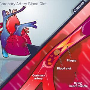 От чего бывает инфаркт: выясняем факторы, вызвавшие приступ