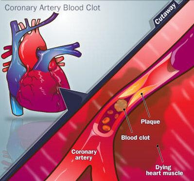 Инфаркт миокарда: причины и признаки