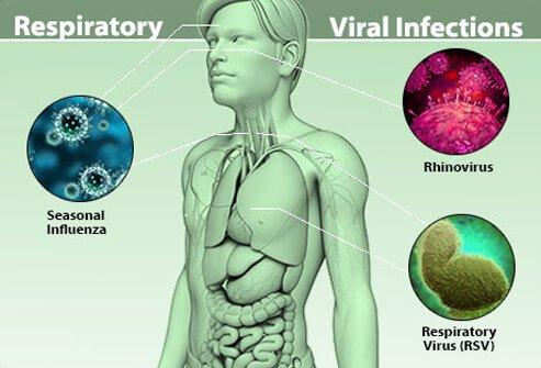 Признаки и симптомы вирусной инфекции у взрослых