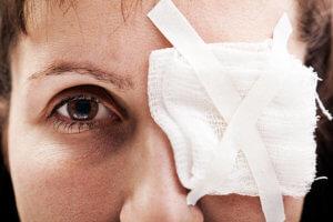 Травмы глаза