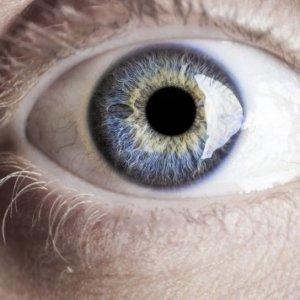 Паралич аккомодации глаза