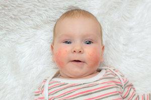 Детская аллергия
