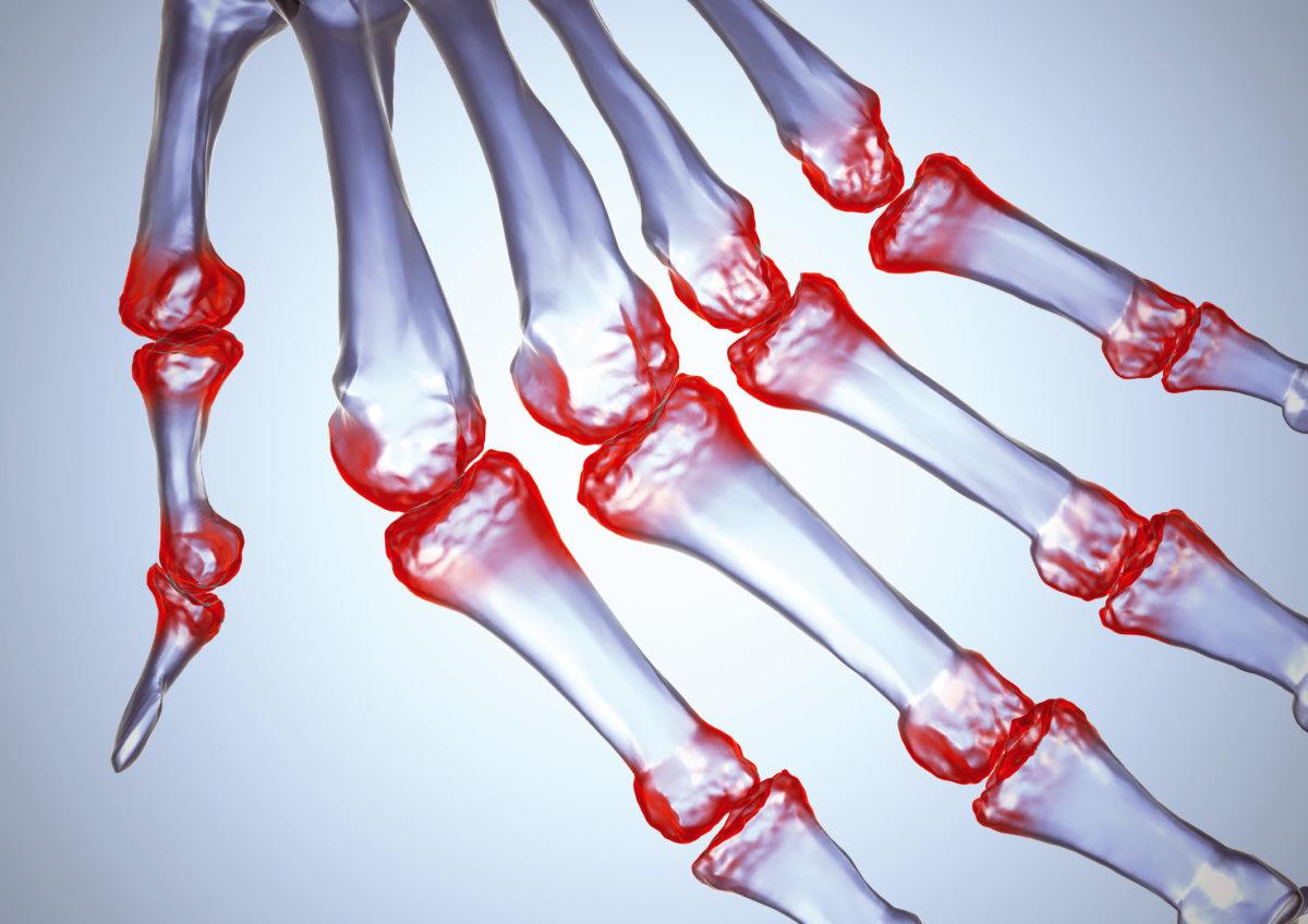 Лечение артрита суставов: симптомы воспаления суставов и лечение артрита в клинике «Мастерская Здоровья», Санкт-Петербург