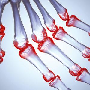 Артрит: причины возникновения и клинические проявления