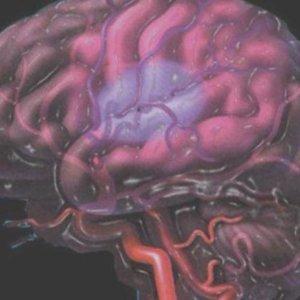 Причины и последствия ишемии головного мозга у новорожденных