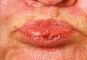 Гранулема на губе
