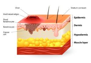 Строение кожи с карциномой