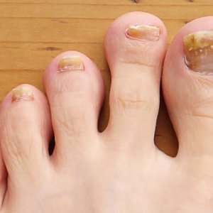 Лечение ногтевого грибка на ногах народными средствами: рекомендации