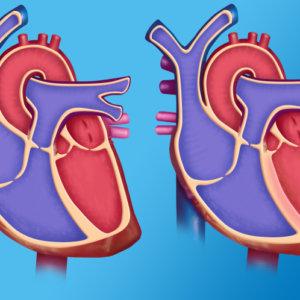 Что такое аневризма сердца и насколько она опасна