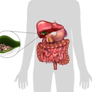 Диета при остром холецистите: питание при поражении желчного пузыря