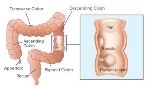 Опухоль в кишечнике