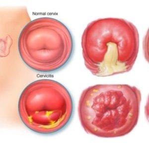 Воспаление шейки матки: факторы развития, лечебная терапия