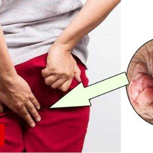 Последствия геморроя у мужчин: к каким осложнениям приводит болезнь