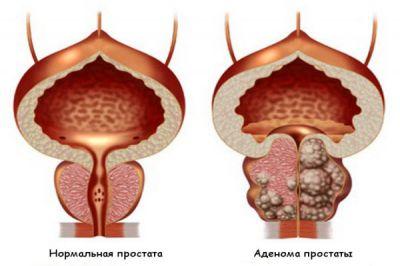 Аденома предстательной железы: операция и возможные последствия