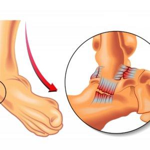 Разрыв связок стопы: лечение и реабилитация