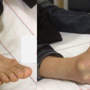 Серьезный вывих ноги