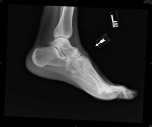 Рентген - главная мера диагностики