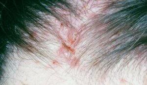 Сухая кожа головы