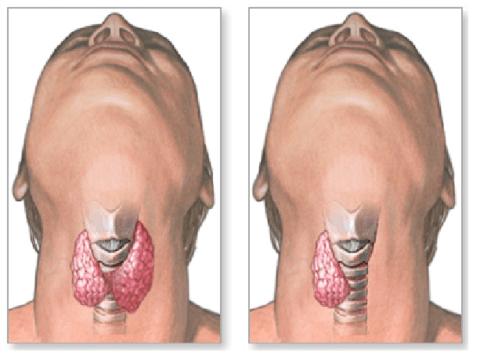 К чему приводит удаление щитовидной железы