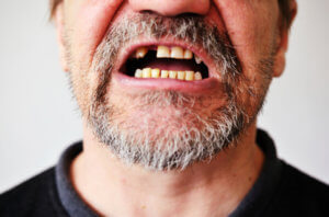 Потеря зуба у взрослого