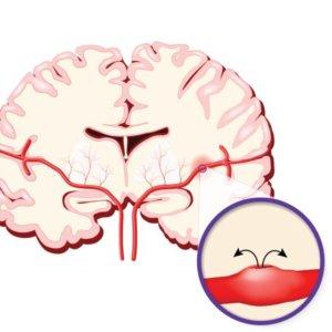 Кровоизлияния в мозг: последствия, симптомы процесса и методы лечения