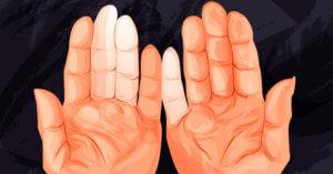 Онемевшие руки
