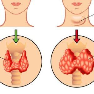 Смешанный зоб щитовидной железы: отличия от других видов, лечение
