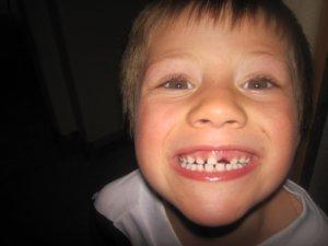 Выпадение зубов в детстве