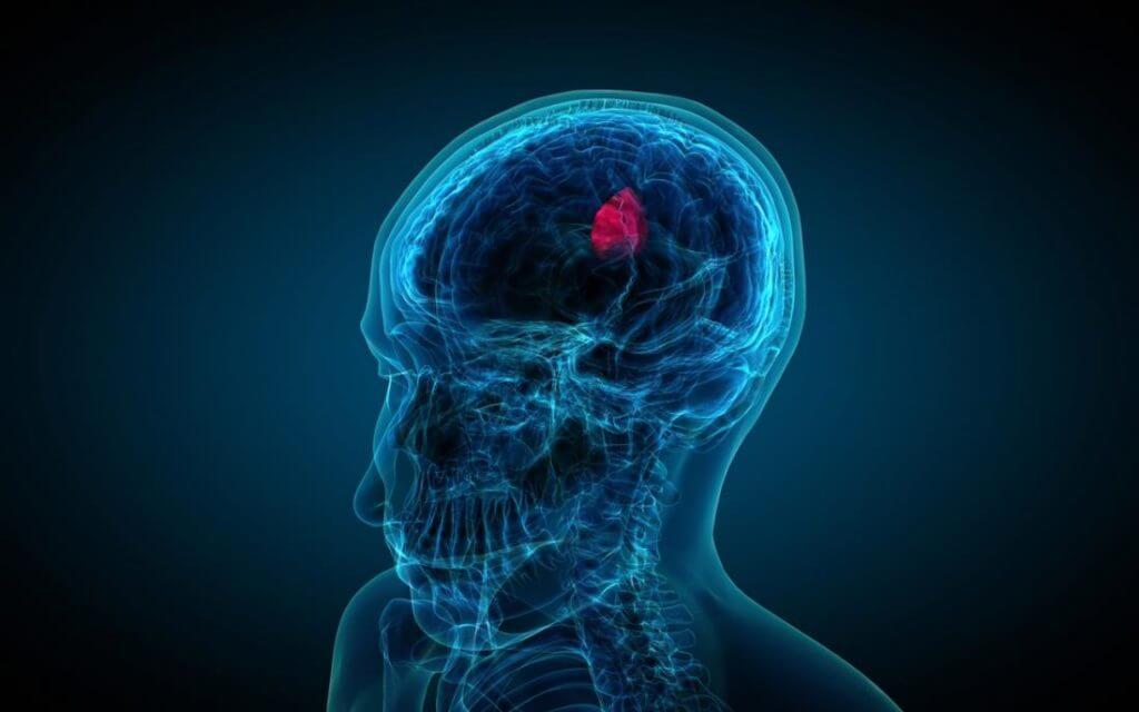 Симптомы опухоли головного мозга на ранних стадиях у взрослых и детей